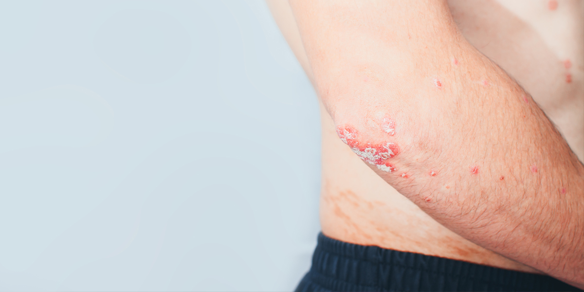 Causes of Psoriasis and Treatment